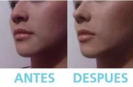 Nariz Perfecta Corrector Nasal