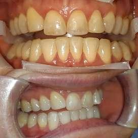 Aclaramientos dentales