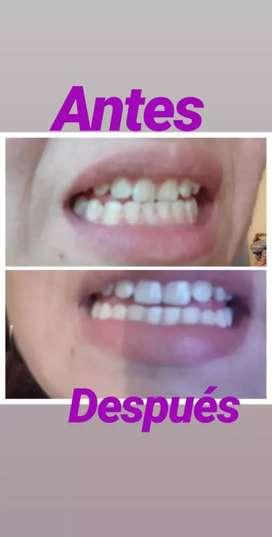 Blancamiento dental