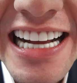 Diseño de sonrisa de alta estética