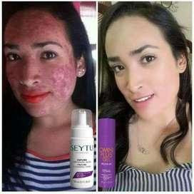 Elimina las manchas y el acne de, tu rostro