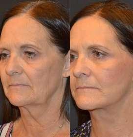 Lifting facial sin cirugía Ultherapy