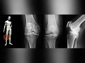 Consulta Osteoartrosis Colombia16