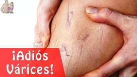 Inyeccion de  varices