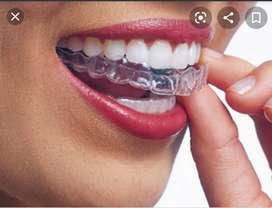 Retenedores post ortodoncia